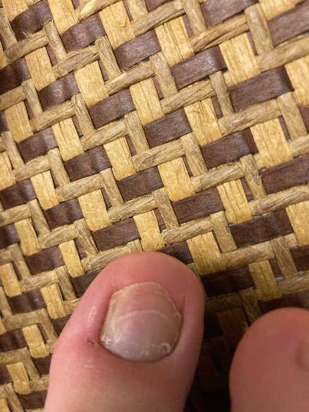 閲覧注意 足の爪が写真のようになっています...。何かの病気でしょうか...