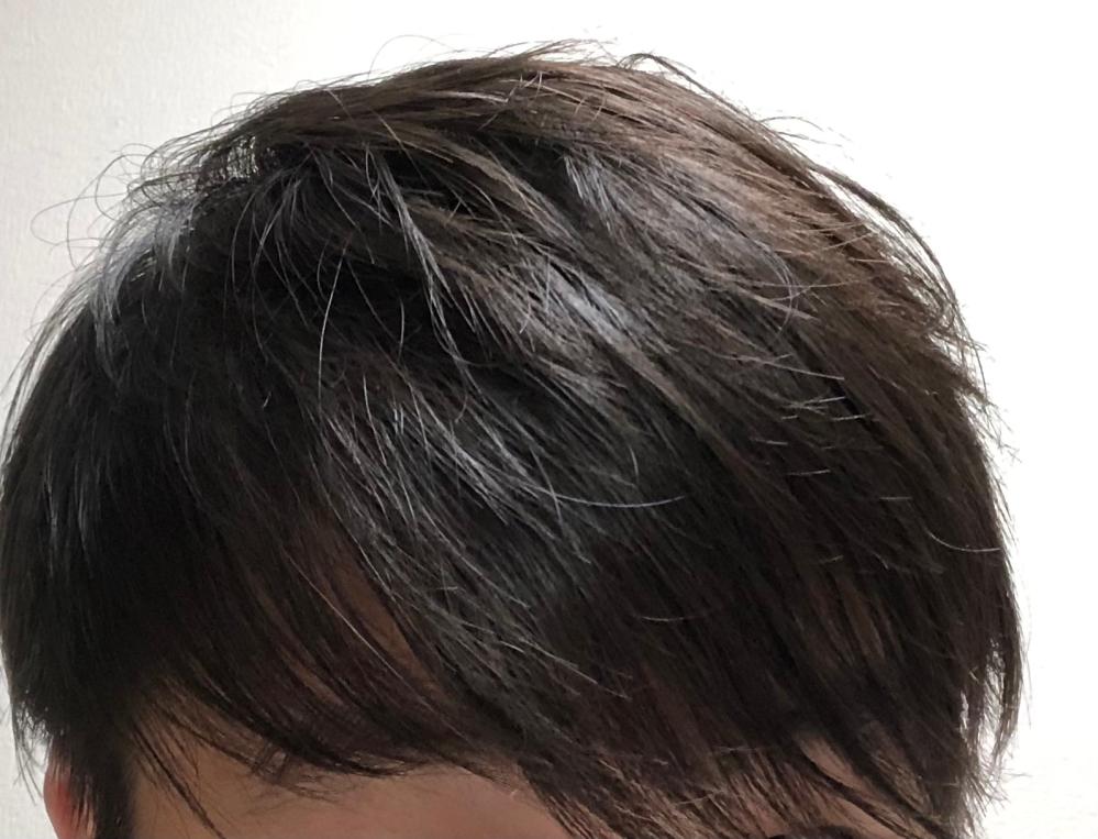 高校生です これって前髪薄いですかね?(しばらくアロビックス使ってます) 特に左の方とか