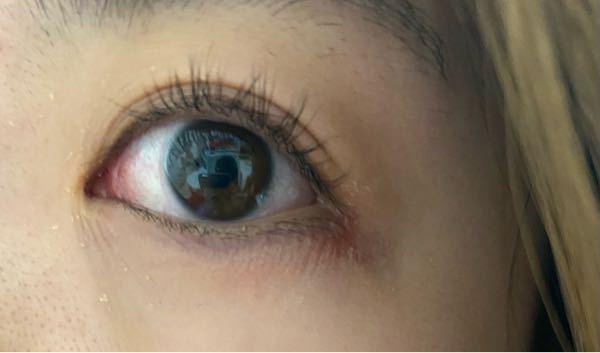 汚くてすみません。 目の奥が痒い感じがして目尻がかぶれてヒリヒリする状態なのですが、眼科と皮膚科どちらに行くべきでしょうか。