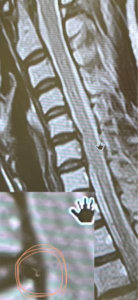 MRIが分かる方お願いします。首、肩、指の関節が痛いです。 写真は首のMRIです。何と診断しますか? また、拡大した画像の丸で囲っている所に、糸くずのようなものがあるのですがこれは何でしょうか? 宜し