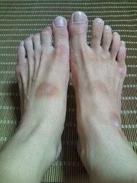 甲 黒ずみ の 足