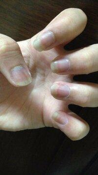 男爪って、なにかしらしたら女爪に変わるんですか? 写真のように、私はすごく男爪で、爪を伸ばしてみても白い部分が長くなる一方で、ピンクの部分が短くて、綺麗に見えません。  周りには女爪で、綺麗な爪の娘し...