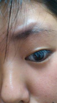 眉毛の上の出っ張ってる部分が気になります。どうにか消えないでしょうか
