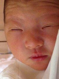 赤ちゃんの目について。  現在8ヶ月の赤ちゃんのママです。 私一重まぶた、旦那二重まぶた(コンタクト使用時に二重になったらしい。それまでは一重)です。 娘は現在一重まぶたですが、出 産後は二重の線がありました。(写真参照)現在は線は御座いません。  私が一重まぶたのコンプレックスがありましたので娘には二重まぶたになってほしいなぁ。と思います。  実際一重まぶたから二重まぶたに...