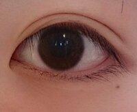 私の目の蒙古ひだは深いほうでしょうか? 整形以外で蒙古ひだを無くす方法はありませんか?