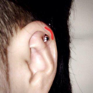 ふち が 痛い 耳 の