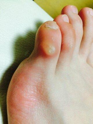 裏 足 痛い の 硬い