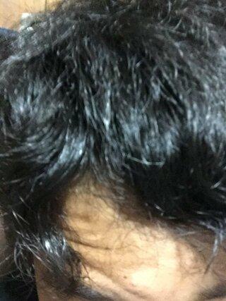 ひどい くせ毛