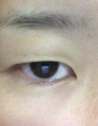 この目は眼瞼下垂ですか? 普段アイプチで二重をつくっている一重なのですが、右目が昔より視野が狭くなってあまり目の筋肉が感じられないというか、左目よりも力が入りません。  眉毛の力を入れず見開いたのが画...