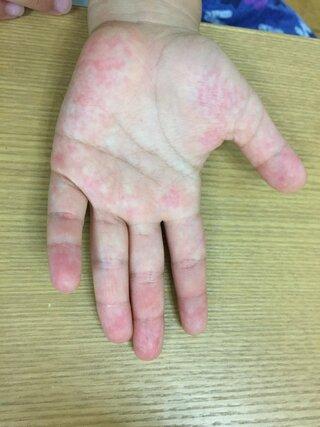 手 湿疹 子供