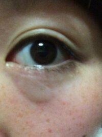 目 の 周り の 痒み