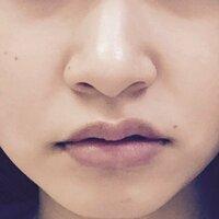 鼻と口が左右非対称すぎて悩んでます。 左右非対称じゃない人なんていないとゆうのもわかってますが、さすがに私の鼻と口は非対称すぎじゃないですか? これを治すには整形しかないですかね…( >_<)