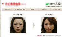 相模原市女性遺体遺棄事件で逮捕された秋山智咲容疑者と、某整形外科のモデルとなっている参考画像の方がそっくりなのですが、他人の空似でしょうかね?