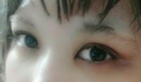 タレ目形成経験者のかたの効果の実感とリスクをおしえてください。 写真は裸眼、すっぴんの写真です。 眉がないのはご了承ください。  私は大きくて少しは目尻側の広い目に憧れています。 私の目は29mmとこぶりで...
