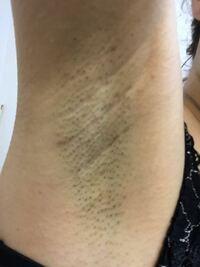 多汗症の脱毛についてです。 写真のように私の脇毛は濃く、硬く、広く、剃った直後でもこのような状態になっています。  そこで、医療レーザー脱毛を受けようと思っているのですが、いくつか問題がありまして、  ...