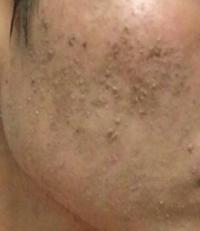 いま肌断食をしているのですが始めてもうすぐ、2ヶ月たちます。肌に黒い垢のようなものが溜まってきているのですがこのまま続けても大丈夫でしょうか? 肌断食のやり方は洗顔料は一切つかわず朝夜ぬるま湯だけで...