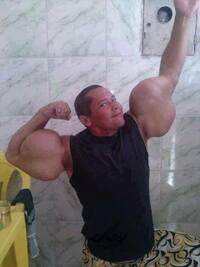 シンソールの注射で、筋肉を美しく自然に大きく見せるためのポイントを教えてください。