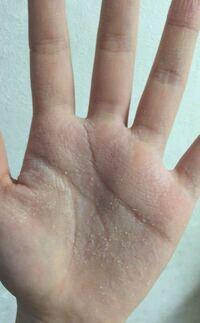 皮 むける 原因 手のひら 指の皮がむける原因とは?7つの原因と3つの病気の可能性について