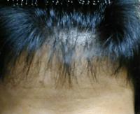 前髪がいつも透けてみえます。未成年です 生え際は特にすかすかです。  これはまずいですか?