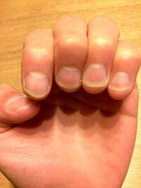 コレって爪長いですか?短いですか? 男です。  今まで深爪気味が普通だったので、久々伸びてきてから 普通の長さが判らなくなってしまいました。  もう切るべきか、ちょうどいいか、それとも まだ短いか。どうで...