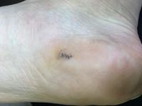 斑点 皮膚 黒い 膠原病の皮膚症状とは