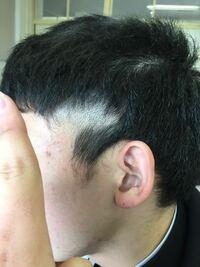 散髪失敗しました。 対処法教えてください。助けてください。 来週修学旅行です。