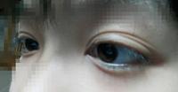 この目、どう思いますか? 私の目です。まぶたしわしわです