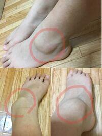腫れ 足 の の くるぶし くるぶしを骨折しても歩ける?完治するまでの期間は?