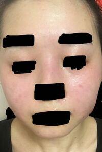 閲覧注意 肌が汚いです。 私は赤ら顔なのでしょうか? ニキビ跡、赤みがすごくきになります。  日焼け止めは年中、日傘は12-2月以外はサンバリアをさしています。 日焼けケアを怠っているわけではないと思うので...