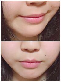 鼻の下長いですか? 鼻の下を短くするトレーニングなどがあれば教えてください。 美容整形はなしでお願いします。