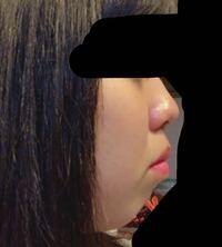 私は横顔がとてもコンプレックスです。 これはアデノイド顔貌ですか? 今歯列矯正をしていて3年目になります。