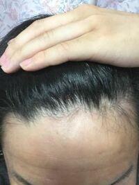 前髪 生え際 はげ 【画像あり】気のせいか分かるM字ハゲの基準とは?|りょーすけ先生...