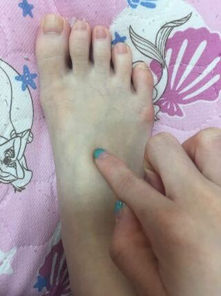 痛み 足 の 甲