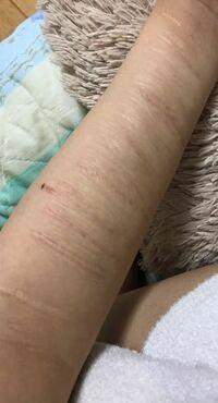 傷跡を隠すメイクを教えてください 数年前ひどい自傷癖があり数ヶ月の短期で作ってしまった傷で治りきってはいますが、腕側の傷の盛り上がり、真ん中より少し手首側の大きな陥没、手首の+++な感じの傷跡を少しでもメイクでましに見せたいです 普段は長袖を着てますがどれだけ隠れるのが試してみたいのです。  オススメのコンシーラーやファンデ、上手な塗り方、それぞれの特徴の傷へのアプローチを教えてください  ...
