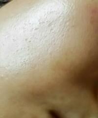 顔のクレーターが片頬だけあり気になります。家で治せる方法はありますか?