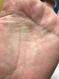 この手相は薄いんですが神秘十字線ですか? 片手だけの写真ですが、このような十字線が両手にあります。 手相に詳しい方いらっしゃいますか?