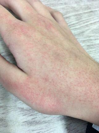 が ヒリヒリ 痛い 皮膚