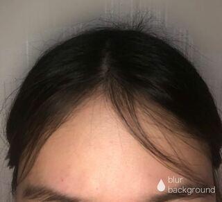 毛 抑える アホ