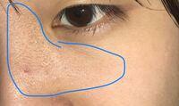 汚いものをお見せしてすみません。 この肌がツルツルになるスキンケア教えてください…。  眉間から鼻周りがザラザラ、ブツブツしております。毛穴の汚れが原因なのかなとは思いますが、対処法が分かりません。一度皮膚科に行った事がありますが、化粧で隠すしかないと笑われてしまいました…。  私の普段のスキンケアはメイク落とし→洗顔→化粧水→乳液です。いたって普通です。順序や足りない部分、足したほうがいい...
