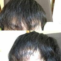 22歳男です。 前髪が細く弱々しく密度が薄くて悩んでいます。(関係あるか分かりませんが一応補足として癖毛です) 画像は最近髪を切ったばかりの自分です。何もセットはしていません。 伸びてくるとマシにはなって...
