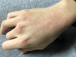 赤い 手の甲