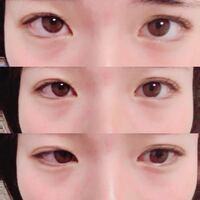 質問です。 目頭の瞼が綺麗にいかず、この二重になってしまうのですが、目頭のところを綺麗な二重にするにはどうすれば良いでしょうか。 これでは笑うと一重近くになります。   補足  私は元が奥二重で自力で二重...