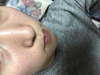目の下のクマのくぼみ?たるみ?が酷くて、湘南美容外科で手術をしようか悩んでいます。 目の下の切らないタルミとりみたいな手術があるのですが、経験された方いらっしゃいますか? 上手くい ったか、綺麗になったか色々教えて下さい。