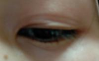 瞼の伸びと整形についてです。 長いです。※まぶたの写真あり、閲覧注意です。  当方20歳、両目とも奥二重(ほぼ一重に見える)で目の位置、幅などが左右非対称です。 中学生の頃に、奥二重の目の自分が嫌になり、まずは100均一に売ってあるアイテープを使って二重にし始めました。 今までの5年間の中で使ったものが、アイテープ→アイプチ→絆創膏(今)です。  二重にし始めたきっかけは、メイクをしてもなか...