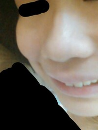 鼻 を 高く する 方法 中学生