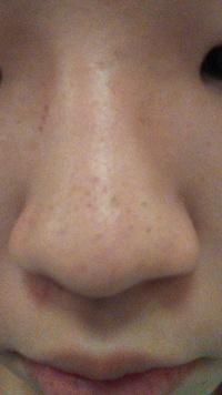 こんにちは。中学生女子です。最近鼻の黒ずみで悩んでいます。色々と調べて鼻の黒ずみパック、ベビーオイルの方法なども試したけど、全く落ちませんでした。そして鼻をよく見たら取れないように 黒ずみが溜まって...