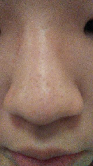 とる 黒ずみ を 鼻 方法 の