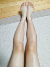 O脚とふくらはぎの太さに悩んでます。 画像つけたのでぜひアンサーお願いします。  画像でもわかる通り、私は重度のO脚です。  そしてふくらはぎの太さは36cmほどで、実際一緒ではないのですが、太ももの太さと見た感じが同じです。 他のサイトで身長からの理想の太さは162×0.2で32.4でした(´;ω;`)  足も太くてかなりのO脚なのでボトムス選びにすごく悩んでいます。 細くする方法やO脚を...