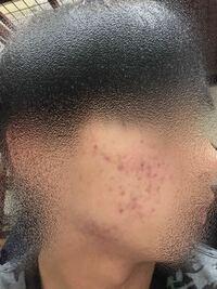 肌荒れ、ニキビ跡についてです 僕は両方の頬や顎まわりにこのようなニキビ跡?とかニキビができます、どおしたらいいでしょうか、 薬も塗ってますしやることはやってると思うのですがなかなか治りません、これの...