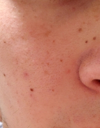 肌が汚いのですがどうしたら良いのでしょうか? ニキビ跡やほくろなのかわからない薄いほくろみたいなやつもあるのですが市販薬なので治したいのですがなにか良いのあるでしょうか?